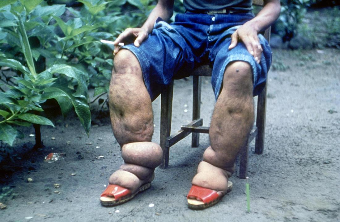 The clinical description of the disease elephantiasis or filariasis