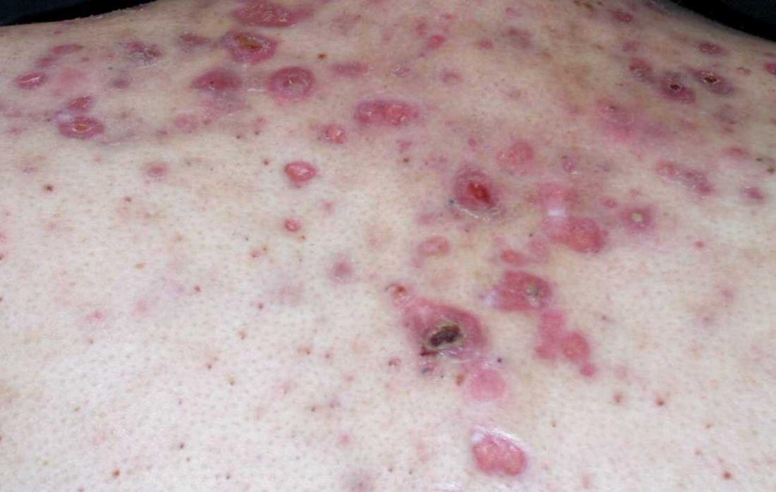 Nodular acne: Treatment and home remedies