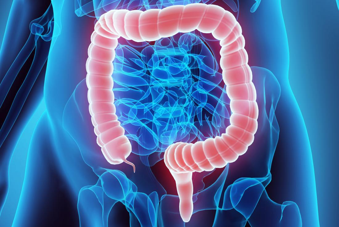 Could Gut Bacteria Drive Colon Cancer