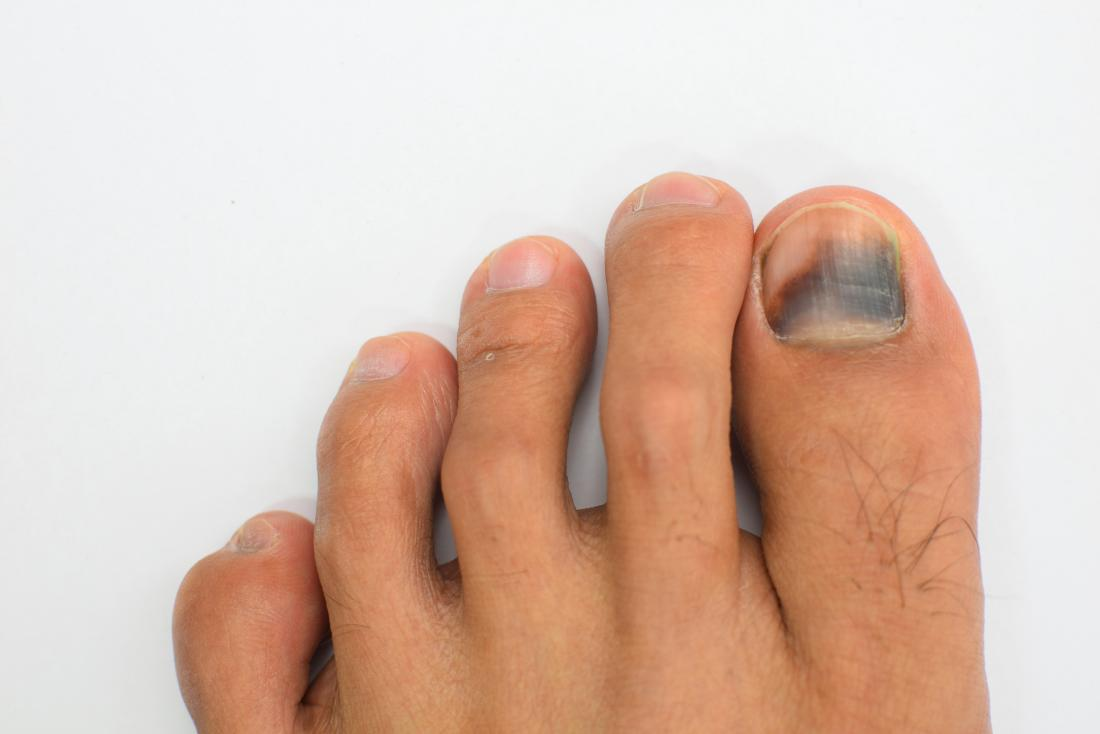 Subungual hematoma: Symptoms, causes, and treatment