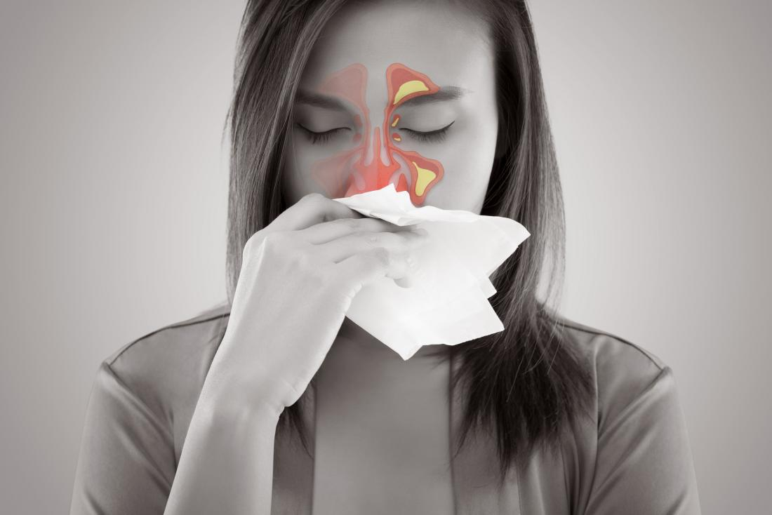 Pansinusitis: Chronic vs  acute, symptoms, and treatment