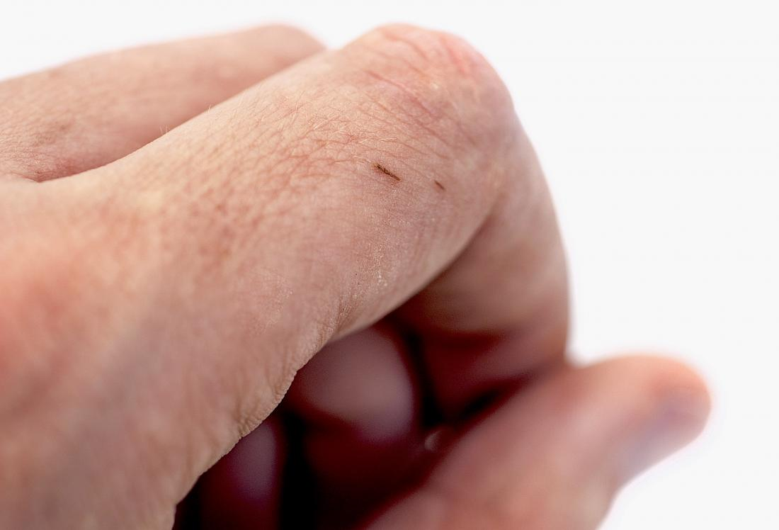 How to remove a splinter: Methods and tips
