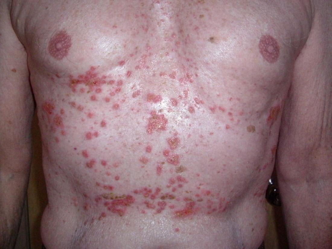 Grover's disease: Symptoms, causes, pictures, treatment