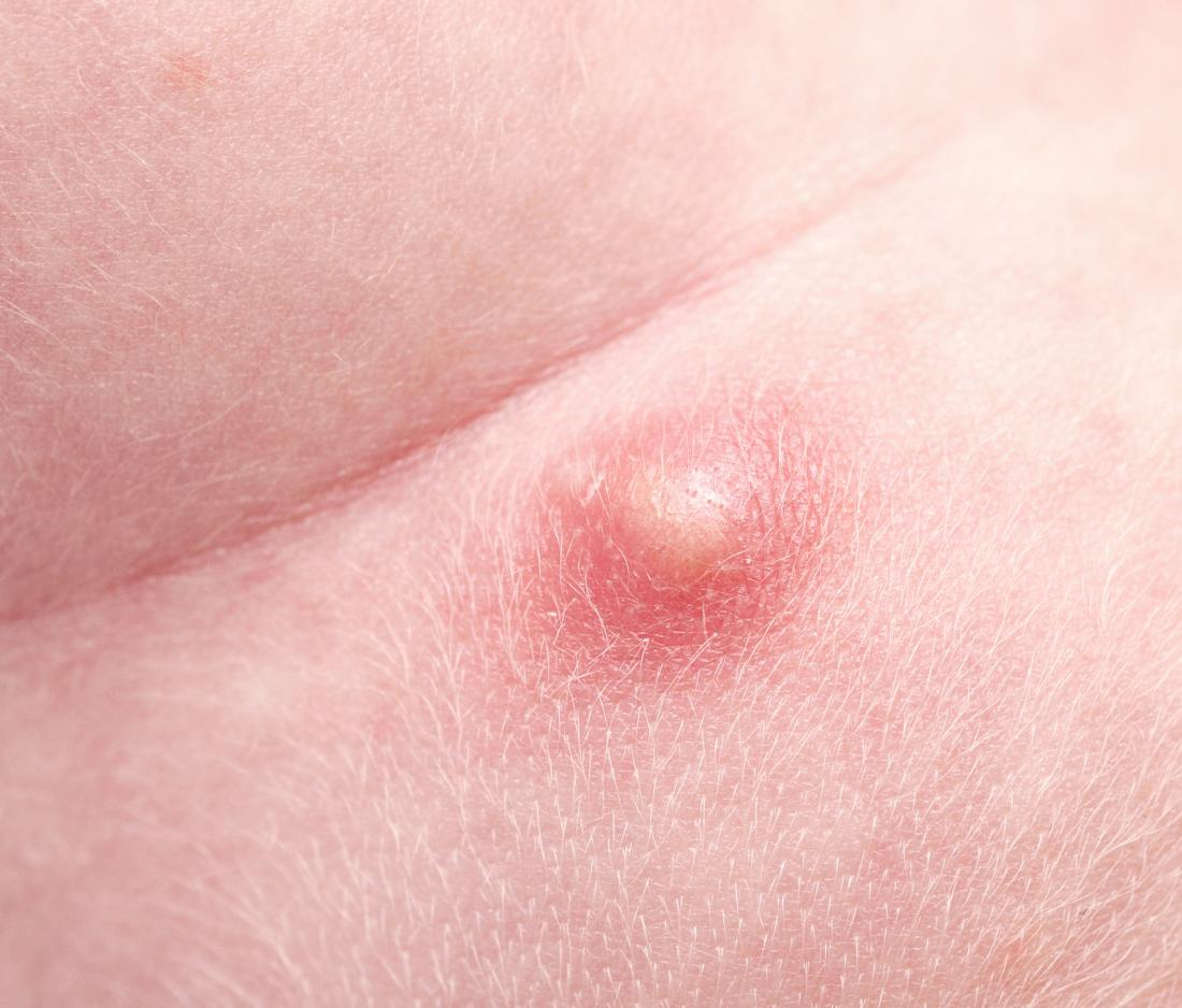 Pimple on scrotum: Causes, types, and when to see a doctor