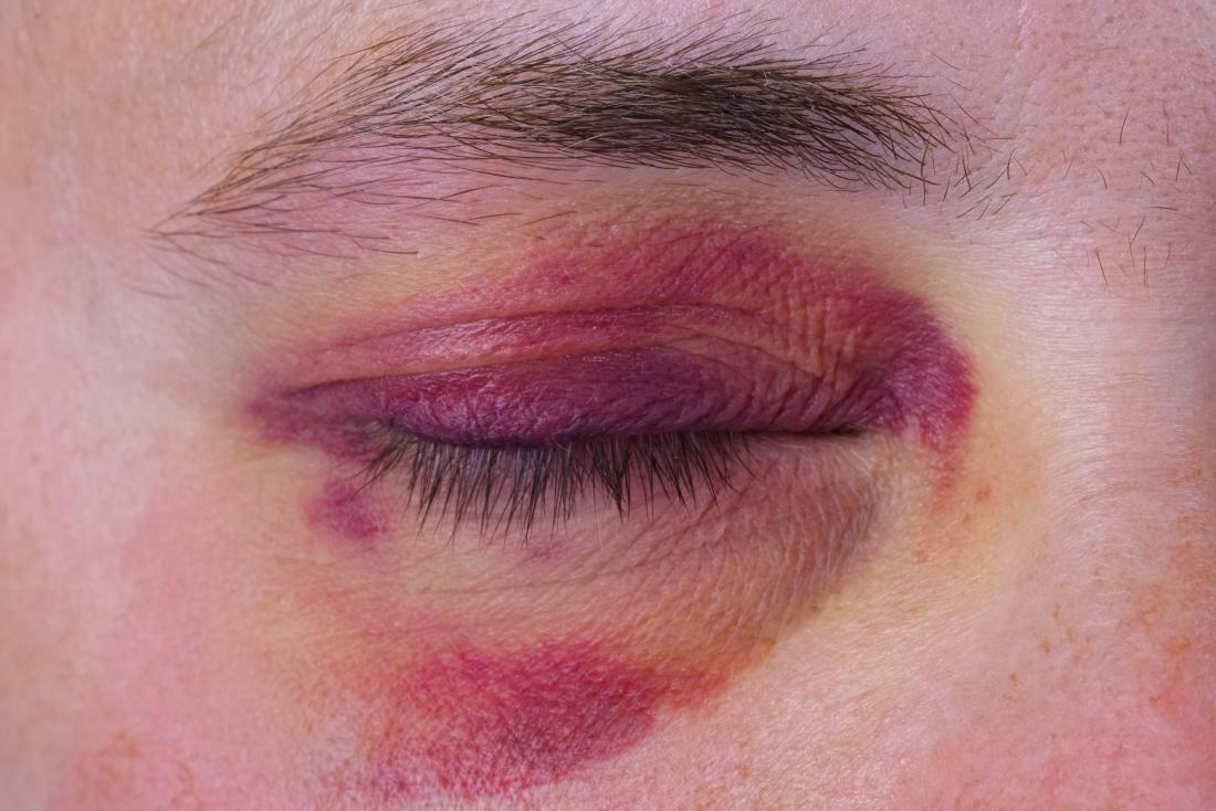 Broken eye socket: Pictures, causes, and treatment