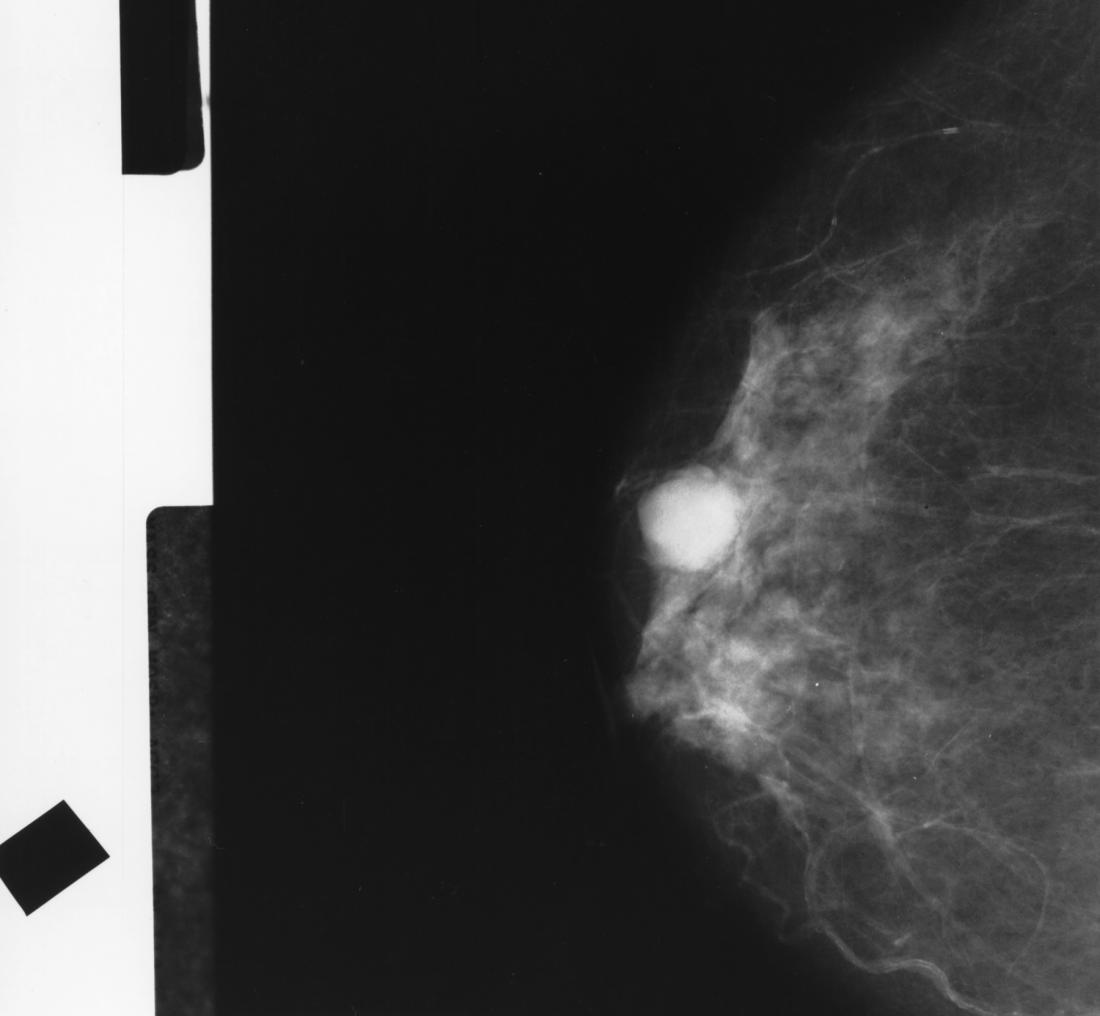 Mammogram Images: Normal, Abnormal, And Breast Cancer