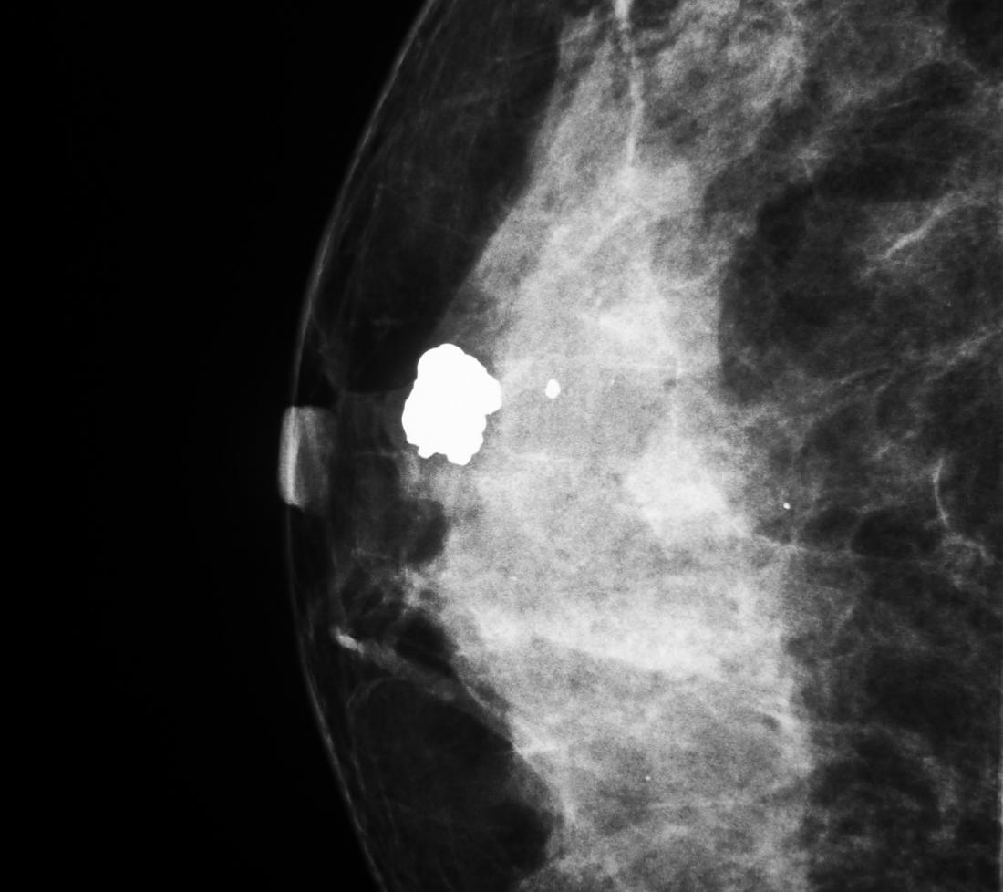 Mammogram Images Normal, Abnormal, And Breast Cancer-1107
