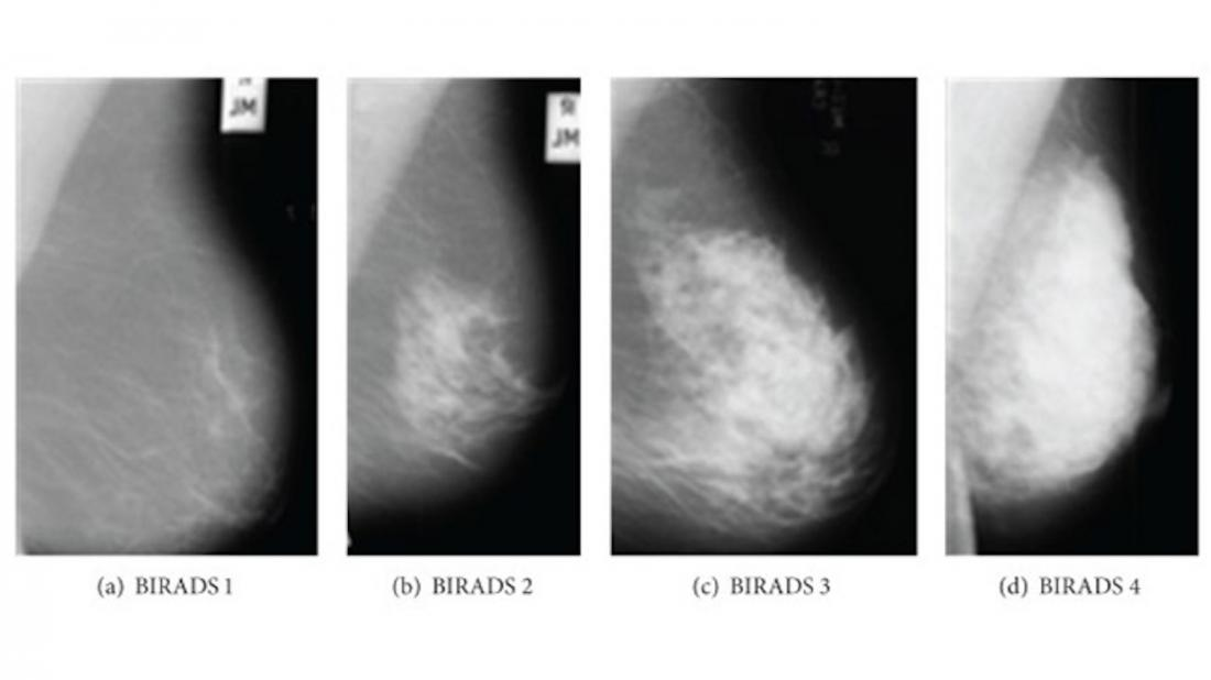 Mammogram Images Normal Abnormal And Breast Cancer