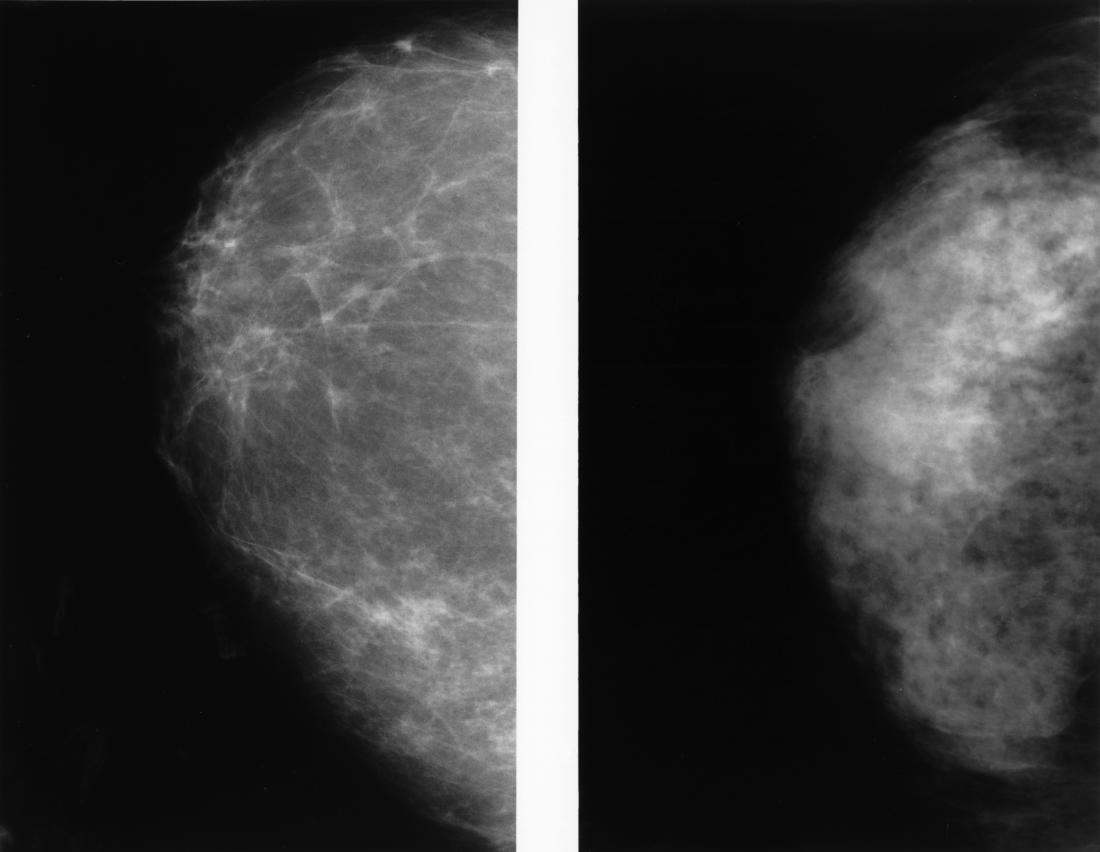 Mammogram Images Normal, Abnormal, And Breast Cancer-3876