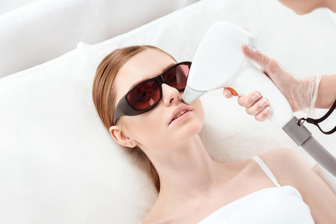 Is laser hair removal permanent, and is it safe?