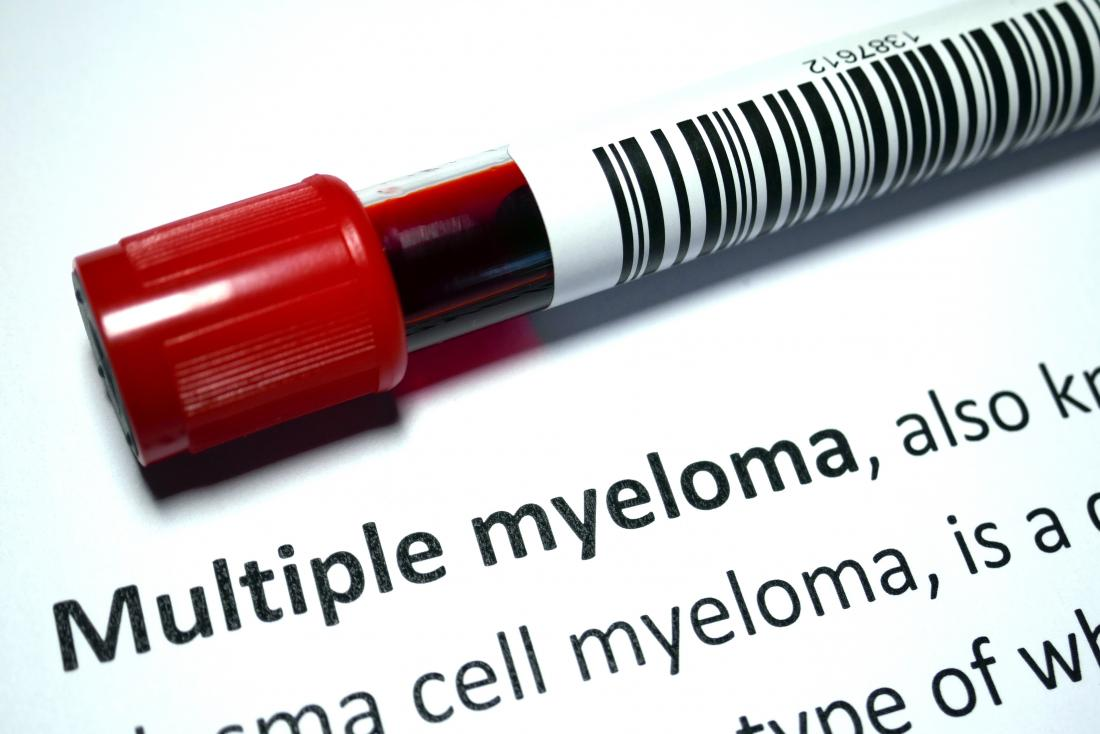 What are the signs of multiple myeloma? Symptoms and diagnosis