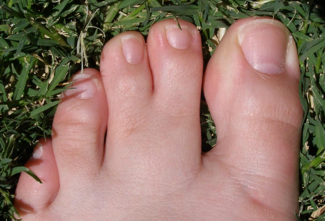Webbed toes: Causes, symptoms, and treatment