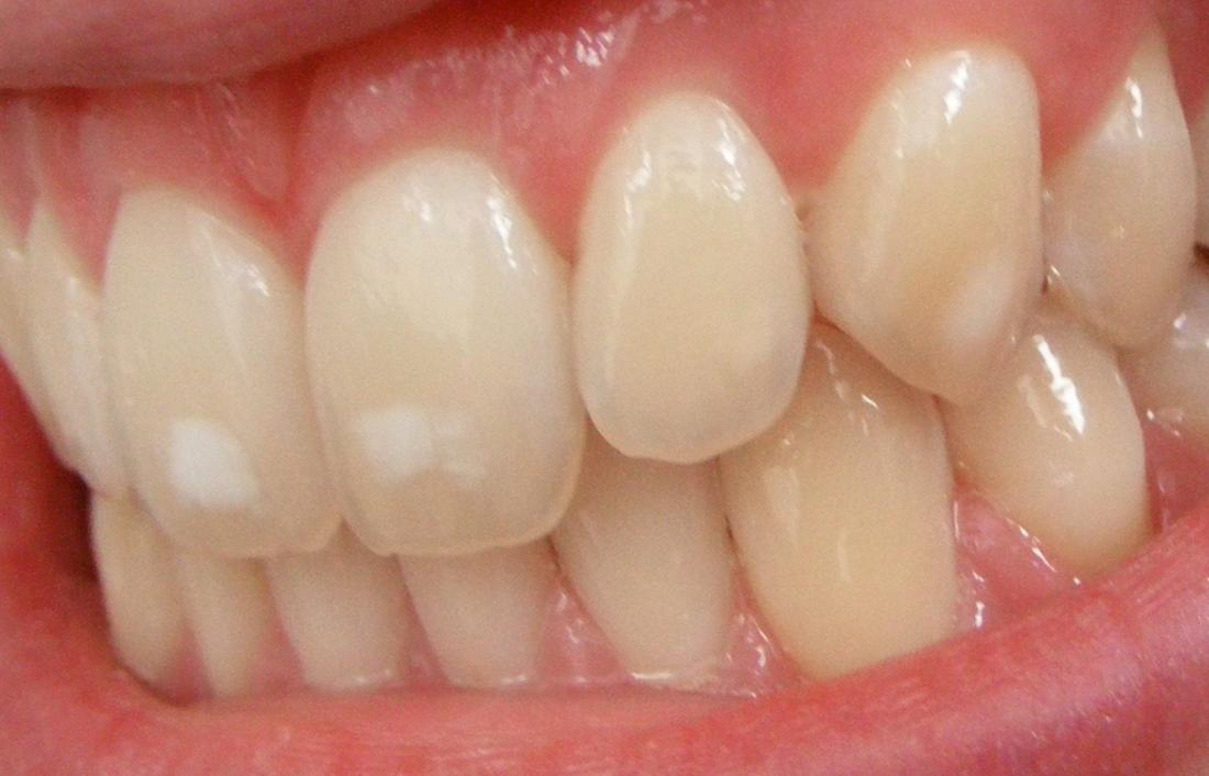 White spots on teeth: 11 tips on how to get rid of them