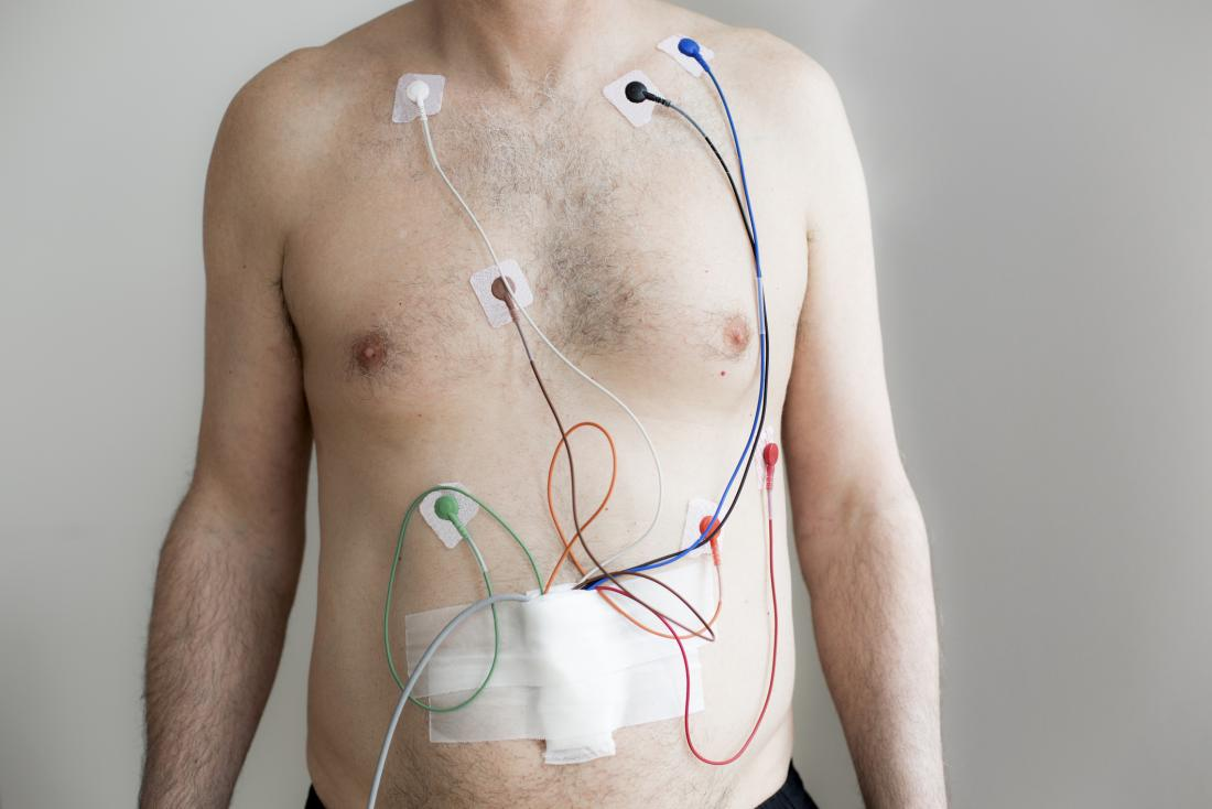 24-hour Holter monitoring: Uses, results, and what to expect