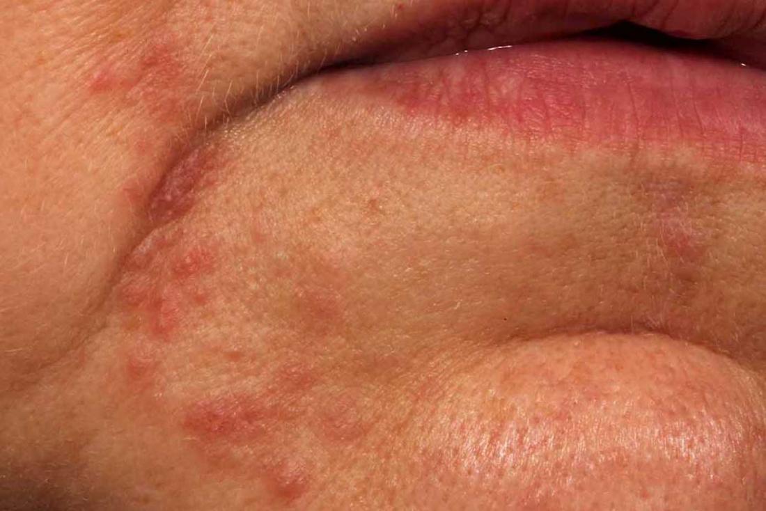 Perioral dermatitis: Symptoms, treatment, and pictures