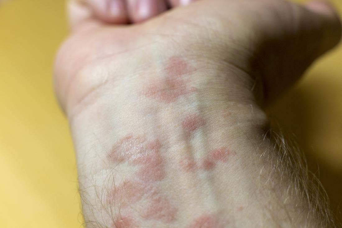 Rash on the wrist: Causes, diagnosis, and treatment