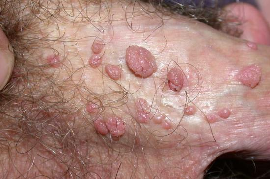 White spots on testicles: Causes and treatment