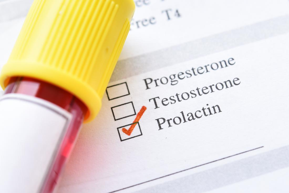 Prolactin level test: High levels, low levels, and when to