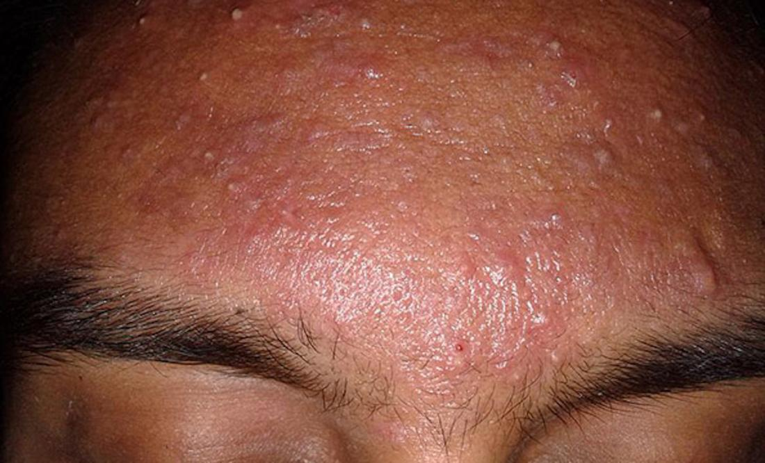 Acne Types In Pictures Explanations And Treatments