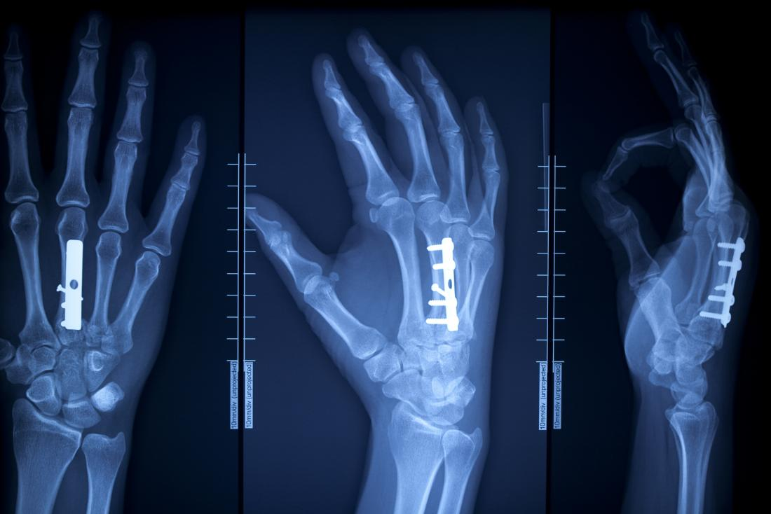 Bone graft: Uses, types, and recovery