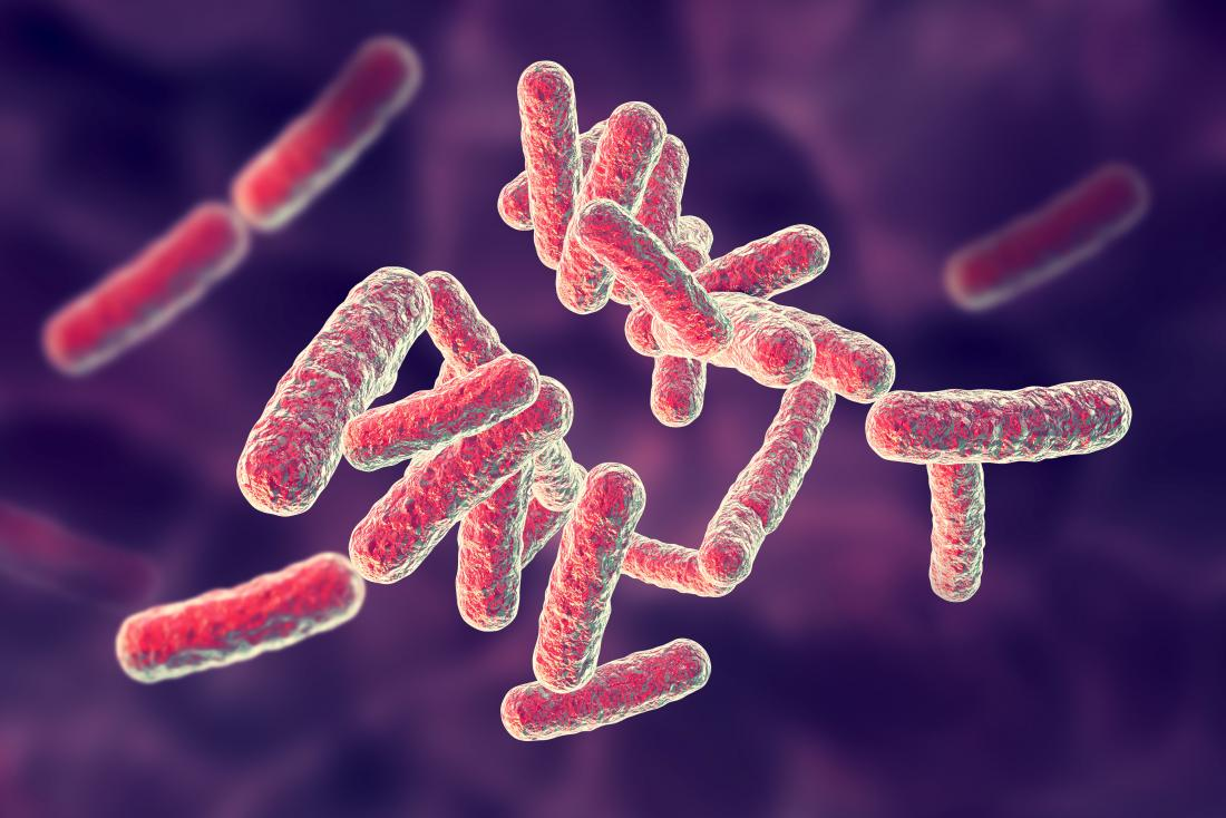Pseudomonas infections: Causes, symptoms, and treatments