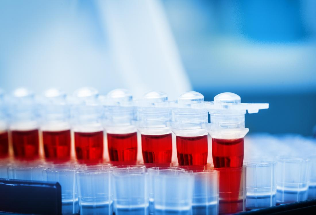 Serum albumin test: Why is it done and what do the results mean?
