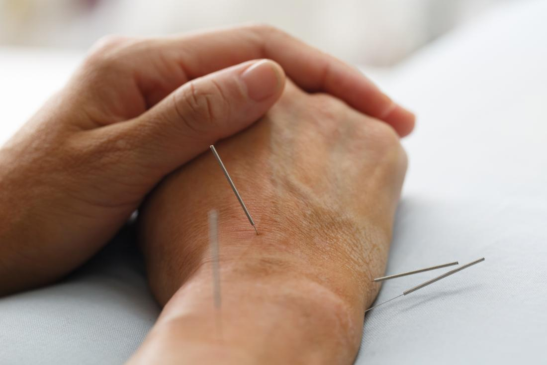Acupuncture may reduce cancer drug side effects