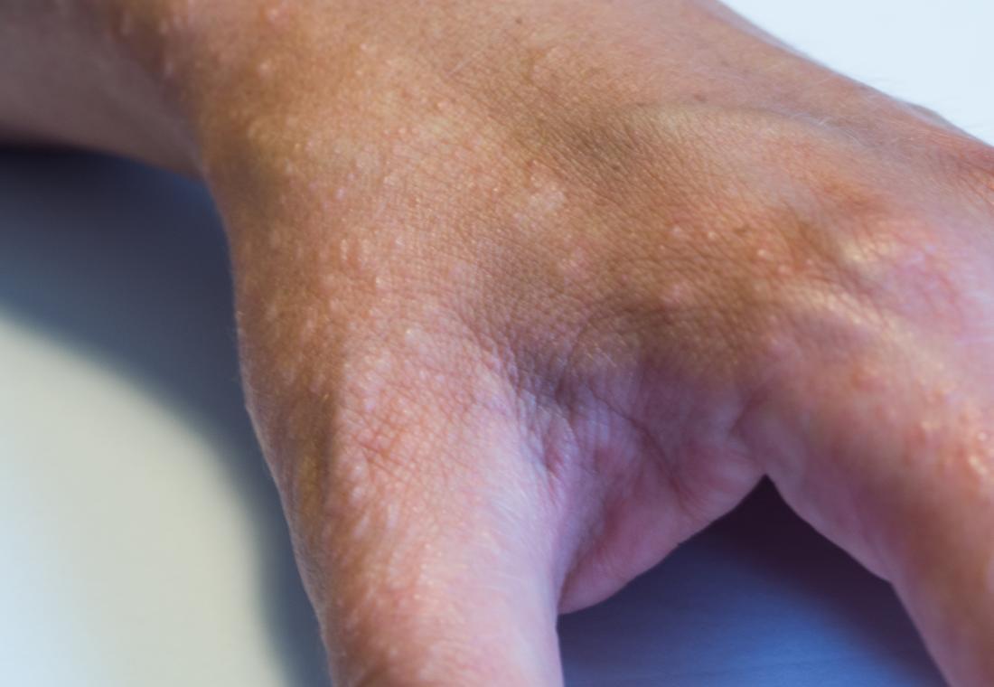 Dyshidrotic eczema on hand.