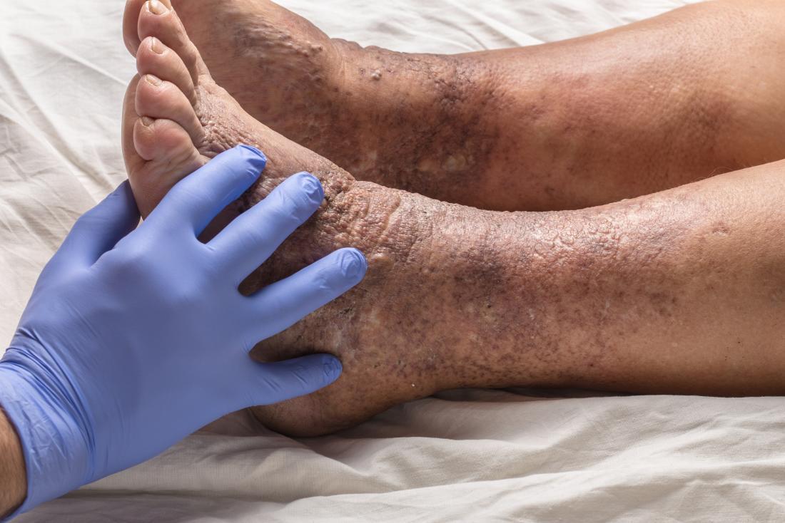 Varicose dermatitis or eczema on ankle.