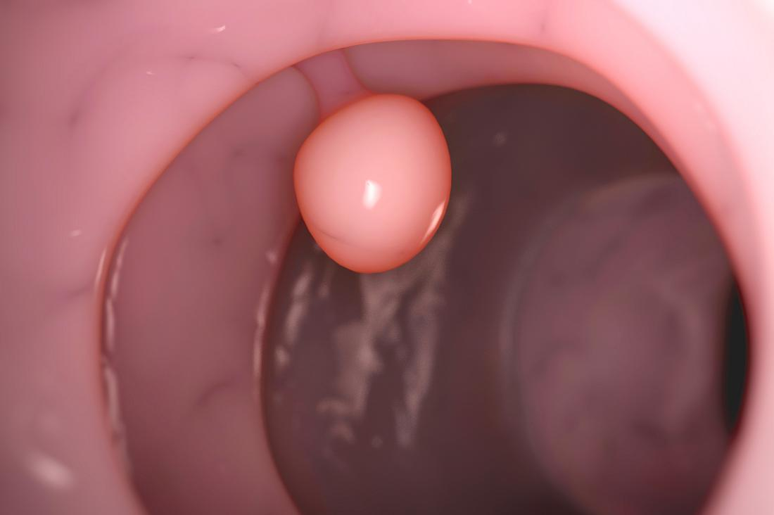 What is a cervical polyp and how do you get one?