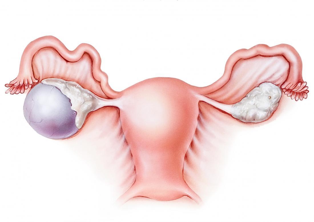 Complex ovarian cyst: Symptoms, risks, pictures, surgery
