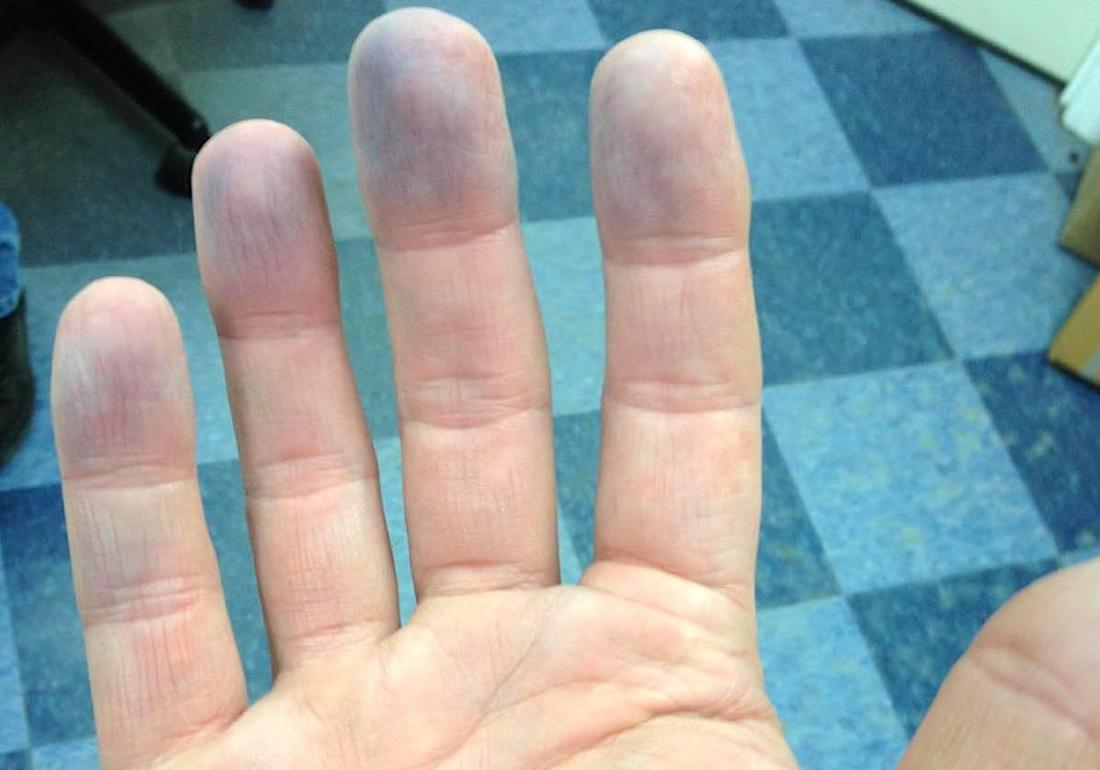 Peripheral cyanosis: Symptoms, causes, diagnosis, and treatment