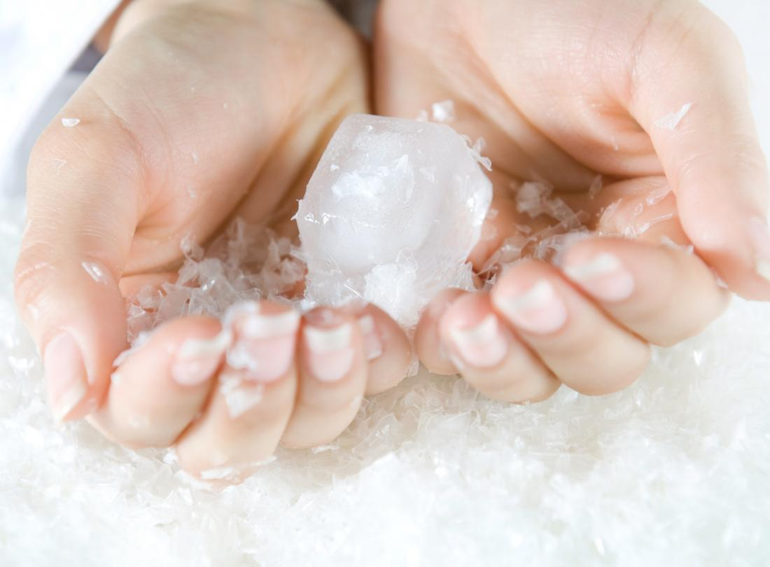 Ice burn: Symptoms, scars, and first aid