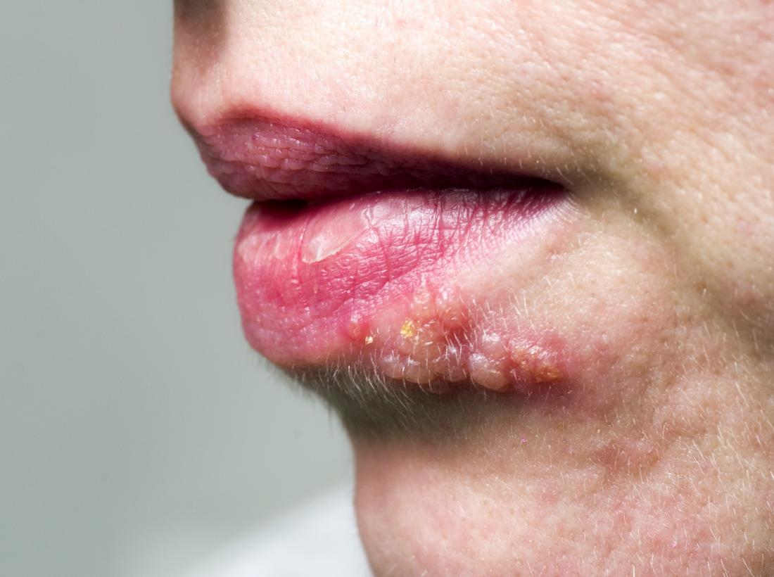 Shingles on the face: Symptoms, treatment, and causes