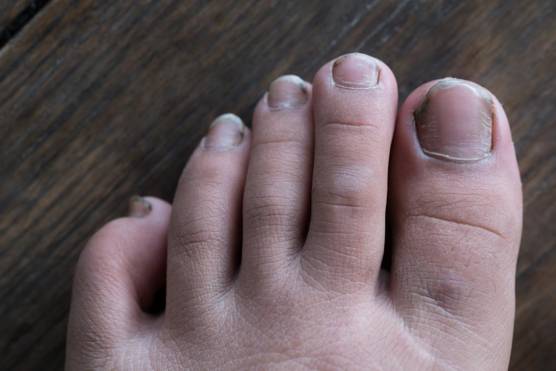 Nail abnormalities: Causes, symptoms, and pictures