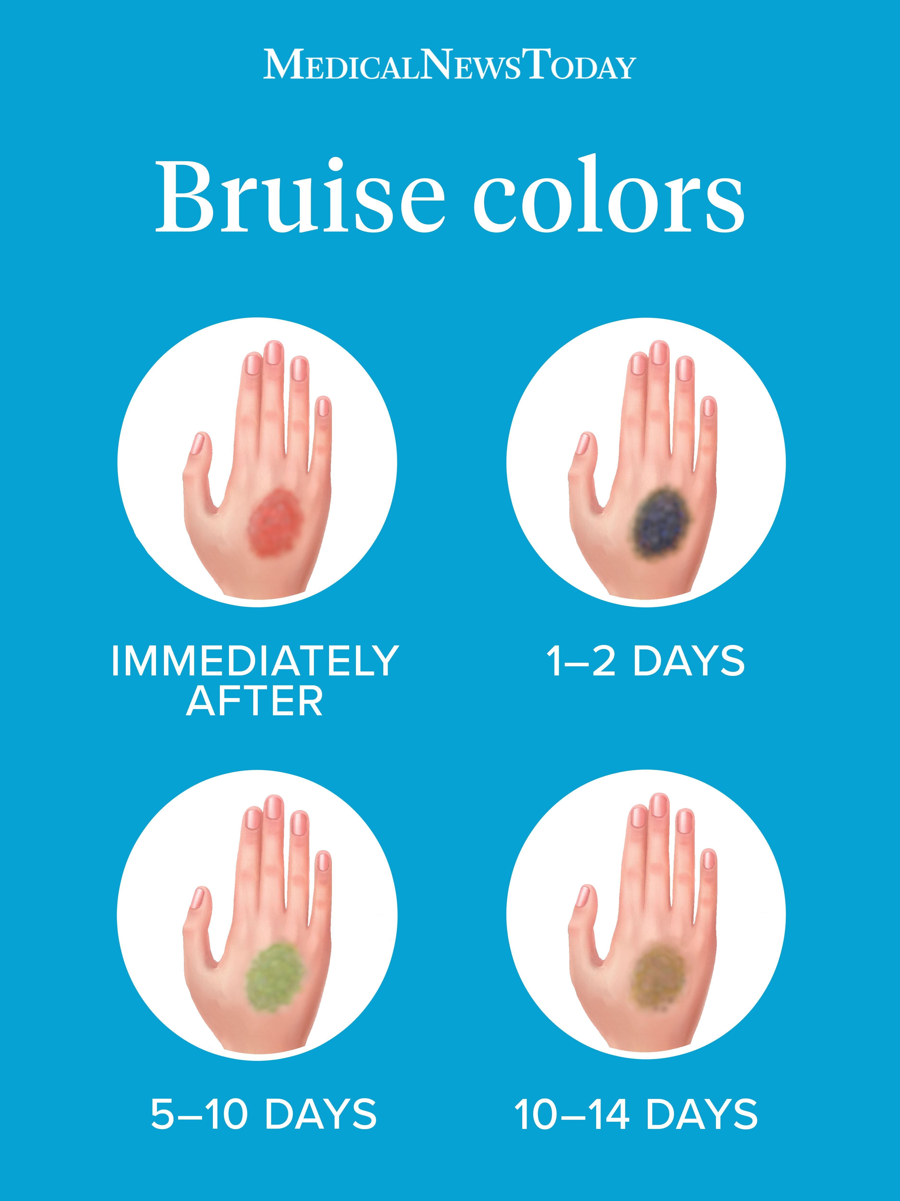 Bruise colors: Causes, timescale, and when to see a doctor