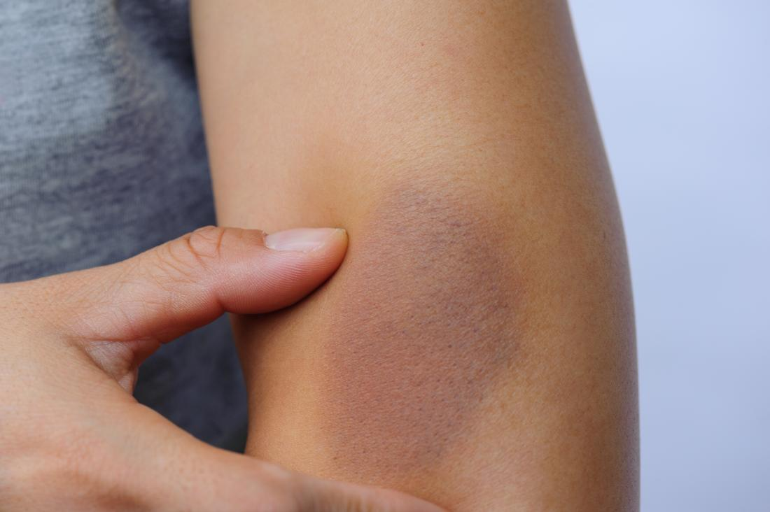 Person with bruised arm around the elbow