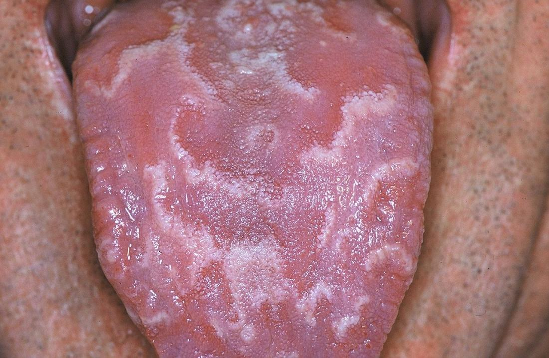 Spots on tongue: Causes and when to see a doctor