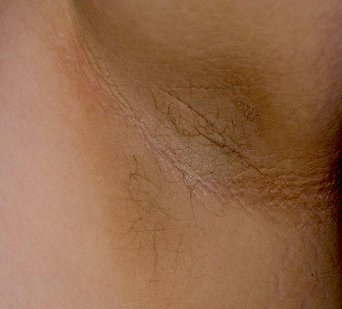 Dark underarms: Causes, treatment, and prevention