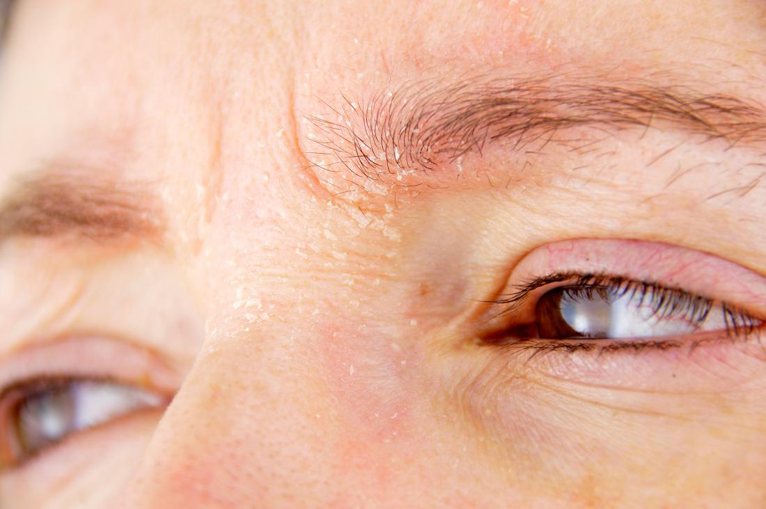 Itchy eyebrows: What does it mean?