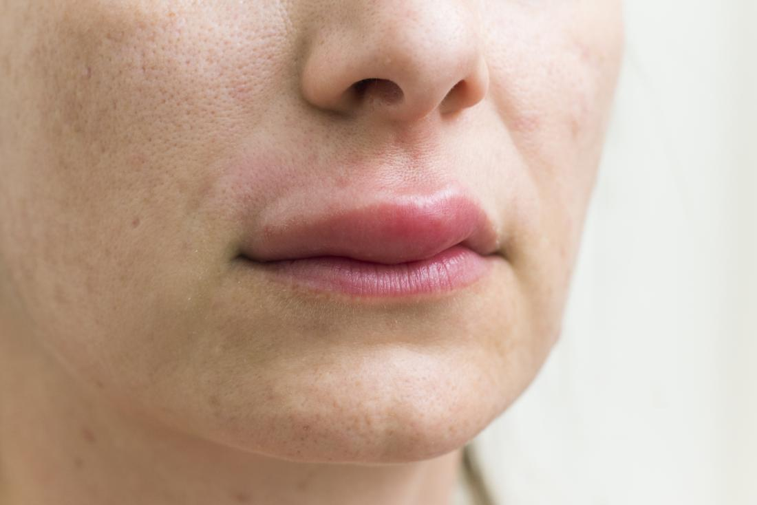 Bump on lip: Causes, treatment, and when to see a doctor