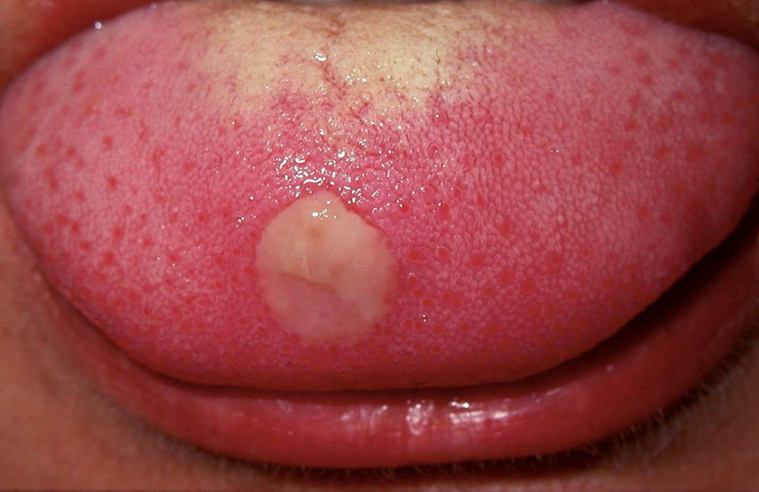 bump  lip  treatment      doctor