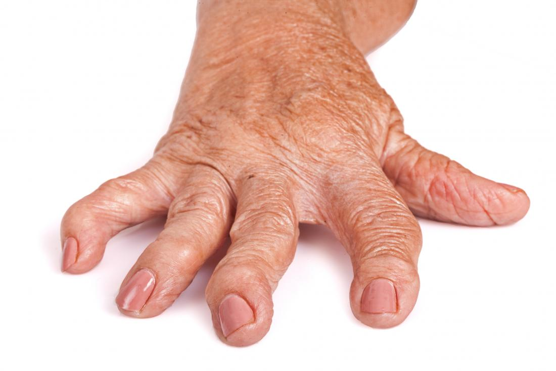 Rheumatoid Arthritis Pictures Symptoms In The Joints