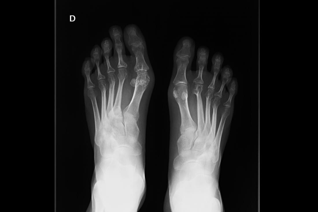x ray palm