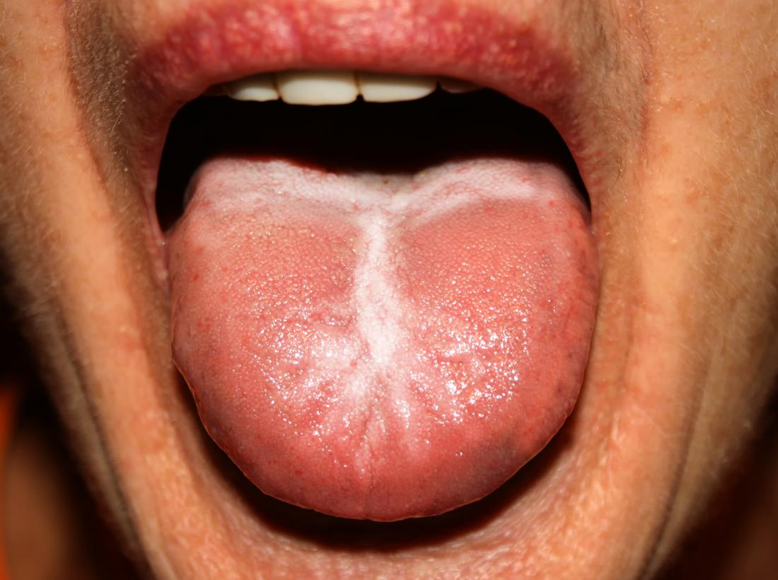 Bump on the roof of the mouth: 12 causes
