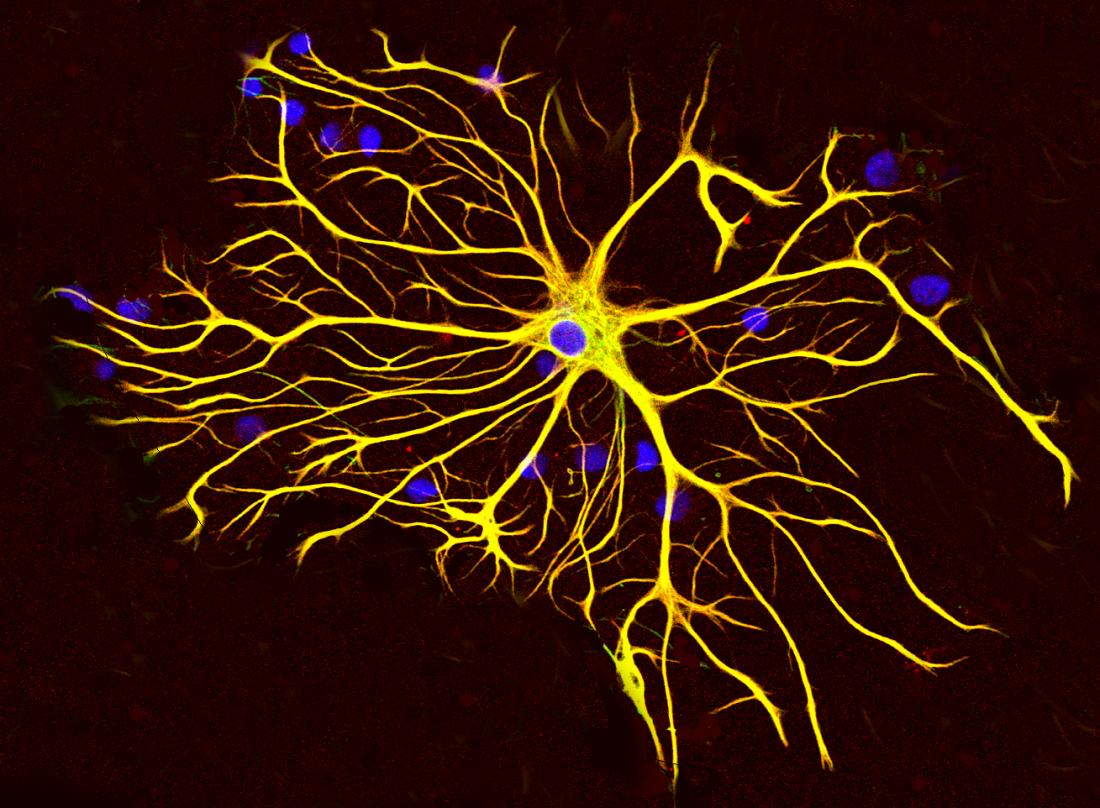Brain cell identified as 'mediator of disease'