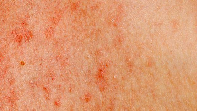 Leukemia rash: Pictures, symptoms, and when to see a doctor