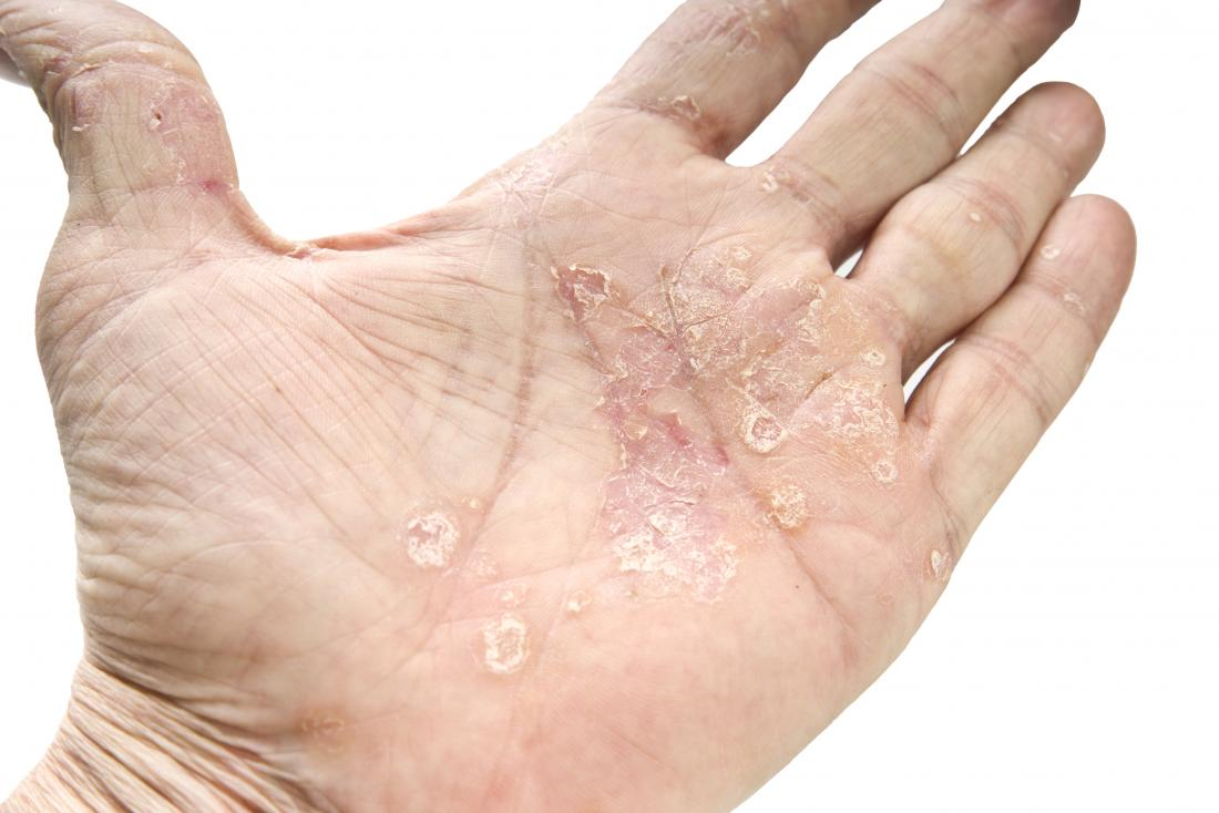 Psoriasis And Cancer Is There A Link