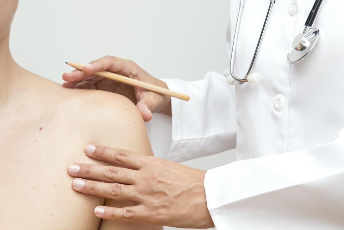 Psoriasis or ringworm? Symptoms, treatment, and other rashes