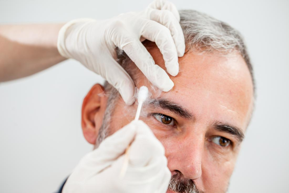 Age spots: Causes, symptoms, and treatment